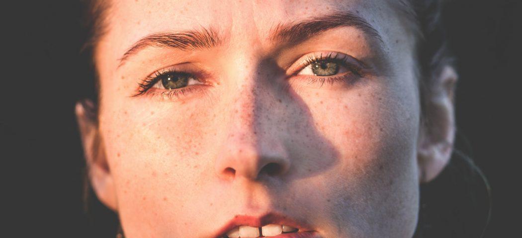 Migliore crema schiarente macchie viso in farmacia: come agisce e quale scegliere